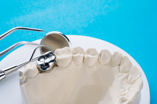 Close up implan modello dente supporto fisso ponte implan e corona.
