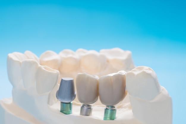 Close up modello di impianto dente supporto correzione ponte impianto e corona.