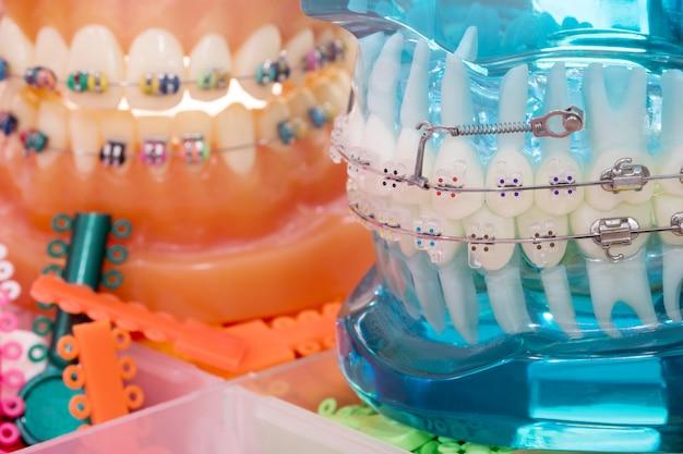 Close up modello ortodontico