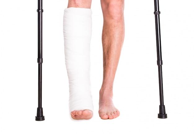 Close-up paziente con gamba rotta nel cast e bendaggio.