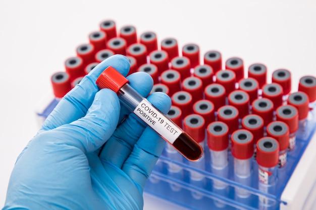 Concetto di analisi del sangue di coronavirus. una provetta con sangue positivo al coronavirus sopra la scrivania del laboratorio. è possibile utilizzare il concetto covid-19