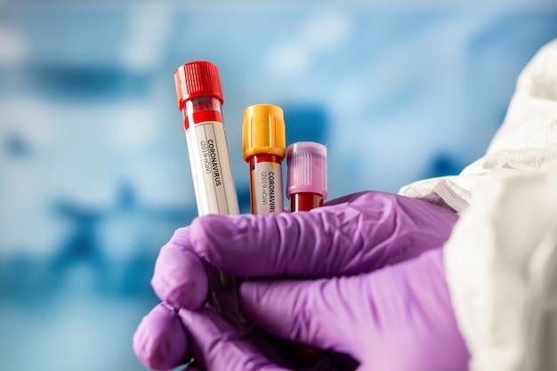 Concetto di coronavirus covid-19. campione di sangue della tenuta del medico o del tecnico di laboratorio.