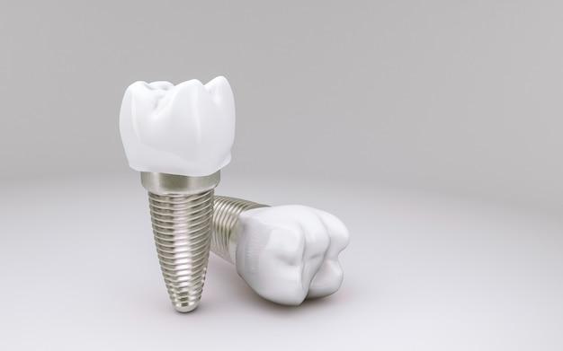 Concetto di impianto dentale su bianco