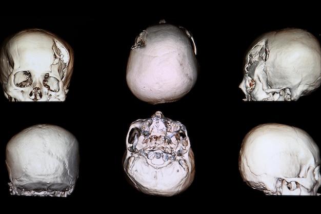 Ct immagine di rendering 3d di un paziente con grave frattura della depressione cranica