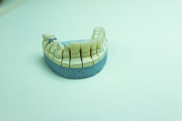 Denti finti fatti in laboratorio