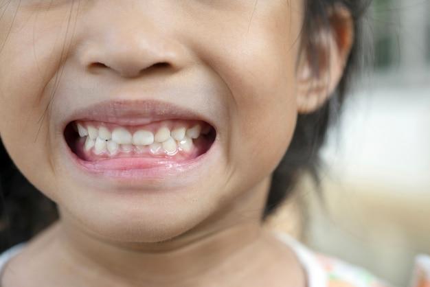 Denti per bambini, denti primari, denti da latte o denti da latte e placca, tartaro per un sano orale
