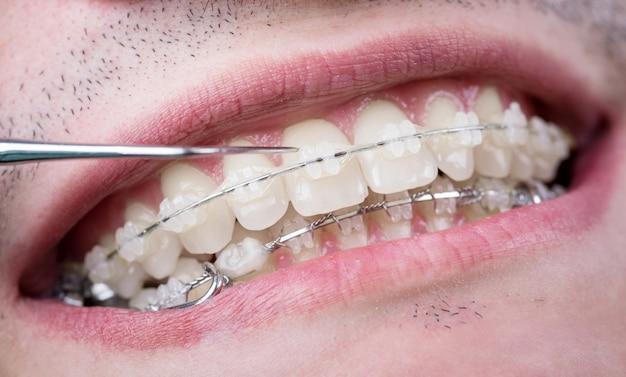 Dentista che controlla i denti con le parentesi ceramiche facendo uso della sonda all'ufficio dentale. colpo a macroistruzione dei denti con le parentesi graffe. trattamento ortodontico. odontoiatria