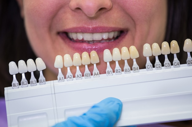 Dentista che esamina paziente femminile con le tonalità dei denti