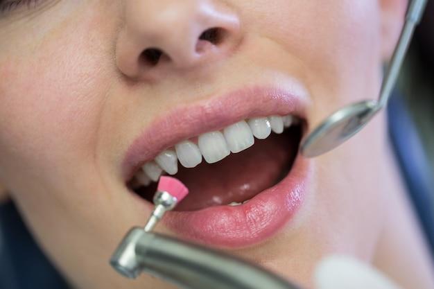 Dentista che esamina un paziente femminile con gli strumenti