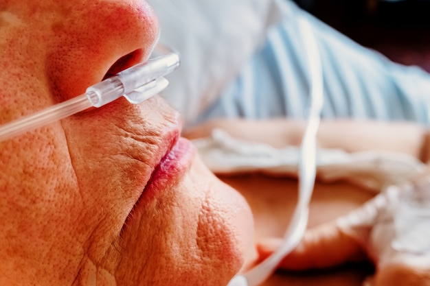 Dettaglio di un paziente che respira ossigeno attraverso una cannula nasale di plastica, donna anziana con problemi respiratori in un ospedale.
