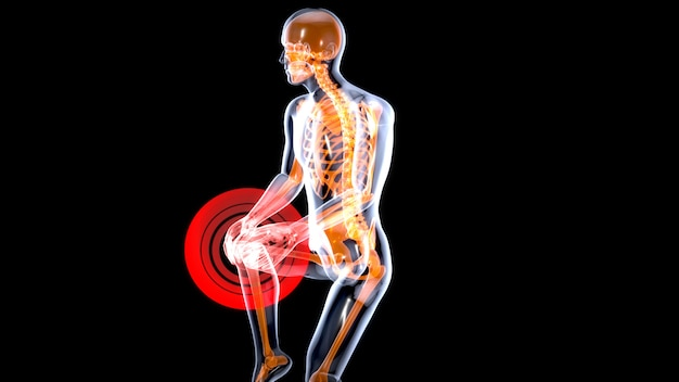 Distorsione o dolore al ginocchio che porta al dolore illustrazione 3d