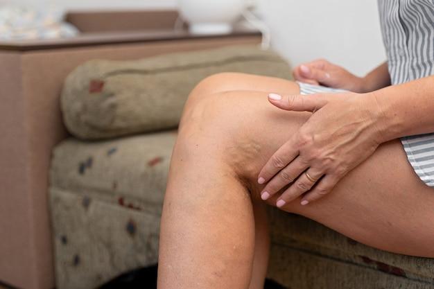 Donna a casa con vene varicose.
