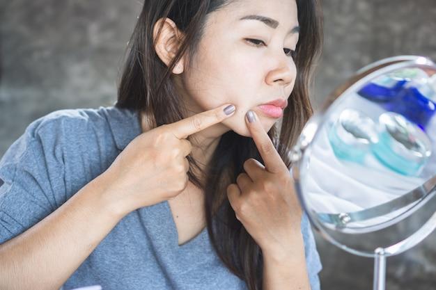 Donna asiatica con acne viso, spremitura brufoli