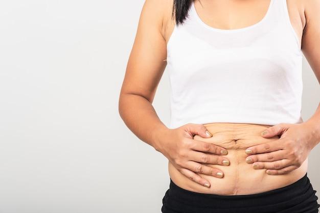 Donna che mostra la smagliatura sull'addome
