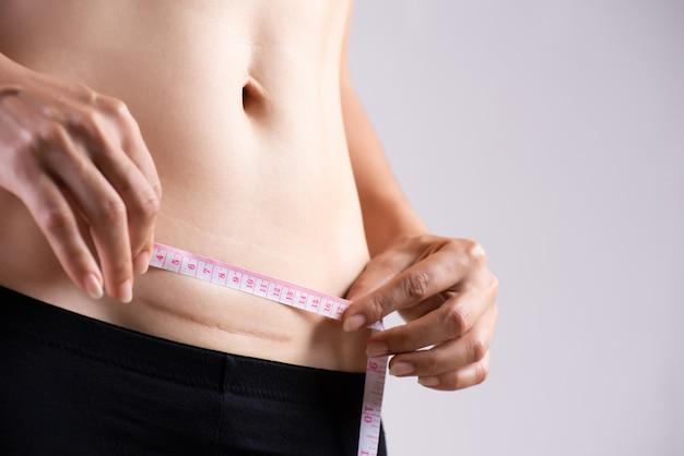 Donna che mostra sulla sua pancia cicatrice scura da un taglio cesareo con nastro adesivo di misurazione