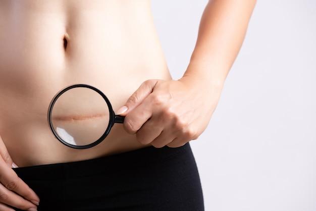 Donna che mostra sulla sua pancia cicatrice scura da un taglio cesareo.