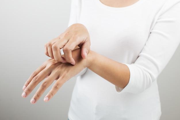 Donna che si gratta il braccio.