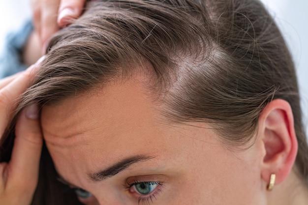 Donna che soffre di perdita di capelli. trattamento dei problemi dei capelli