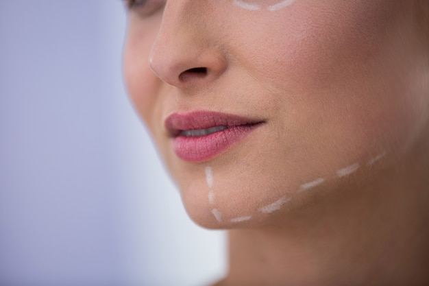 Donna con segni disegnati per il trattamento cosmetico sulla sua mascella
