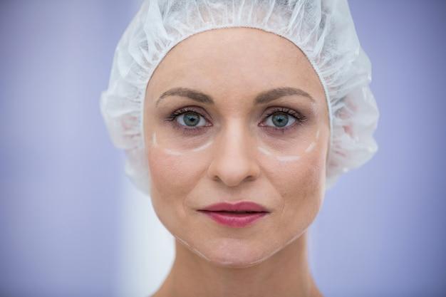 Donna con segni per il trattamento cosmetico che indossa un cappuccio chirurgico