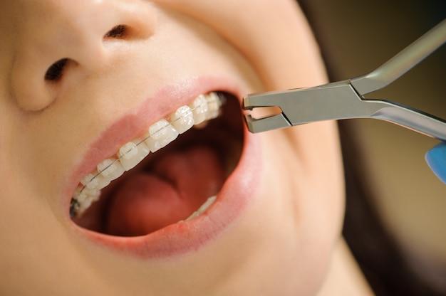 Donna del primo piano con le parentesi graffe di ceramica sui denti alla clinica dentaria