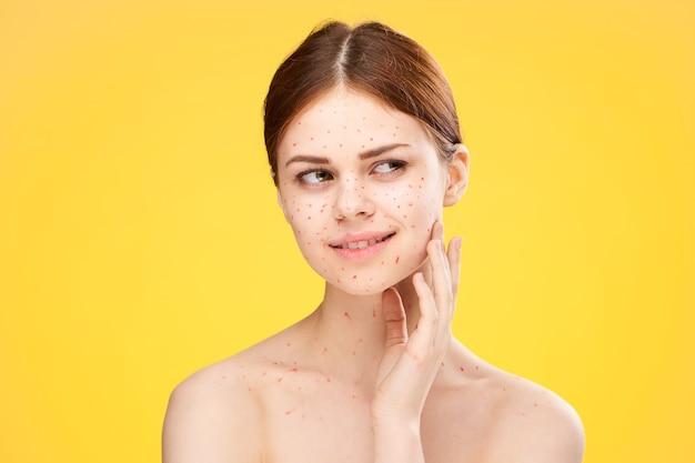 Donna eruzione cutanea e infiammazione del viso, acne e varicella