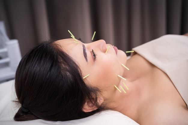 Donna sottoposta a trattamento di agopuntura sul viso