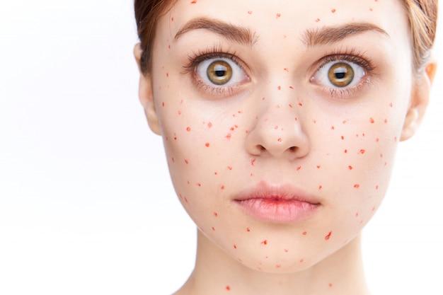 Eruzione cutanea e infiammazione della donna, acne e varicella