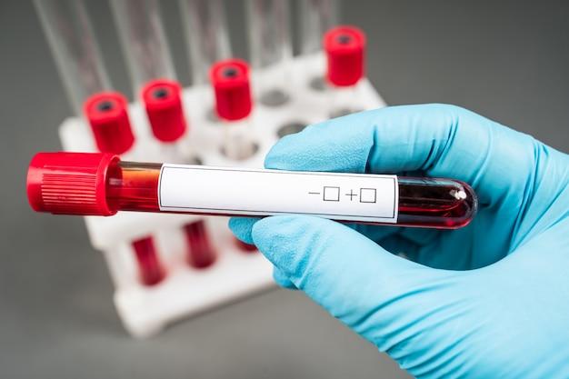 Esame del campione di sangue e provetta vuota per lo screening degli esami del sangue con un'etichetta vuota per il testo in laboratorio