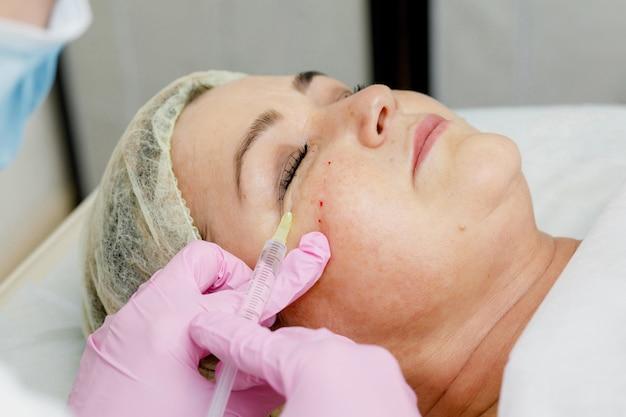 Estetista che fa iniezione facciale per donna. procedura cosmetologica di rivitalizzazione antietà