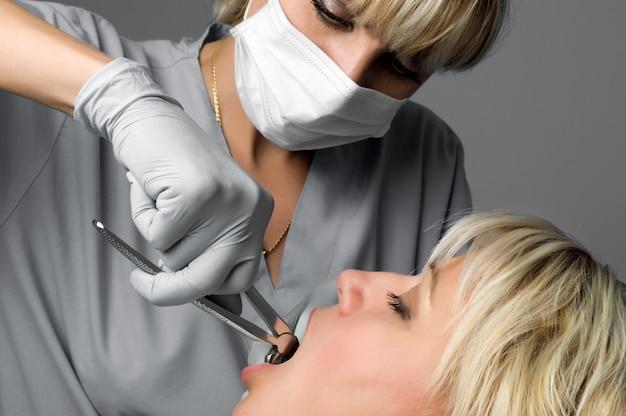 Estrazione del dente mediante pinza, speciale strumento dentale per la rimozione dei denti