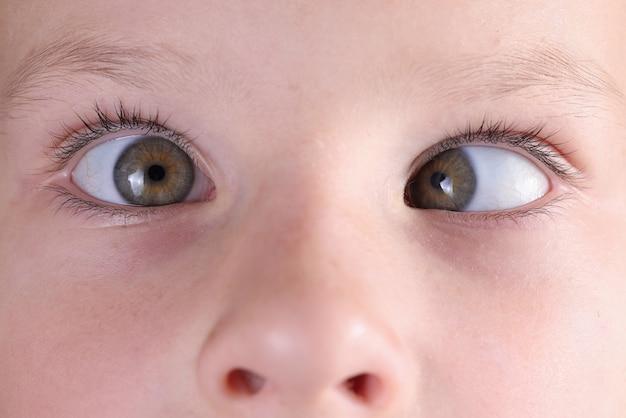 Faccia da bambino con strabismo e lentiggini sul naso.