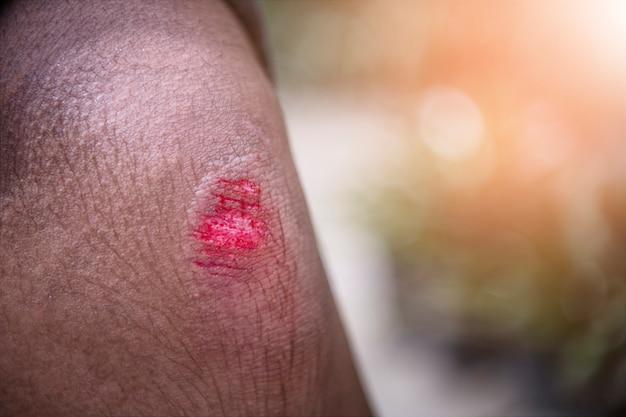 Ferita al ginocchio da caduta e sanguinamento