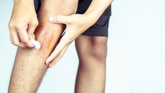 Ferita nelle gambe degli uomini, causata dagli sport.