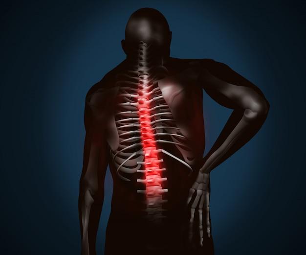 Figura digitale nera con dolore alla schiena evidenziato