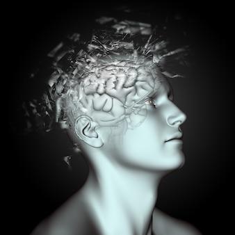 Figura maschile 3D con effetto di rottura sulla testa e sul cervello che descrive i problemi di salute mentale