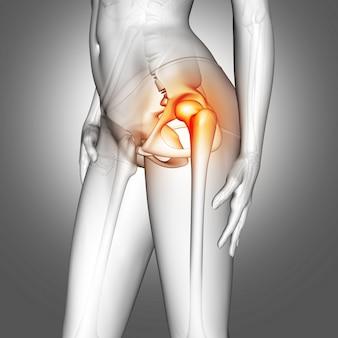 Figura medica femminile 3d con osso dell'anca evidenziata