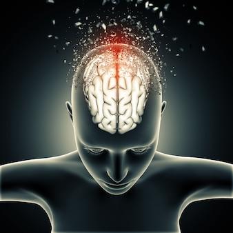 Figura medica femminile con cervello che si disintegra