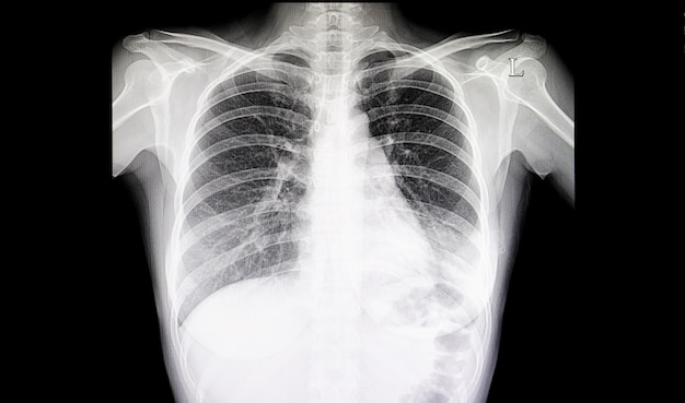 Film per polmoni polmonari