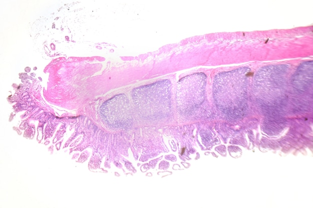 Fotografia di microscopia. grande intestino. sezione trasversale.