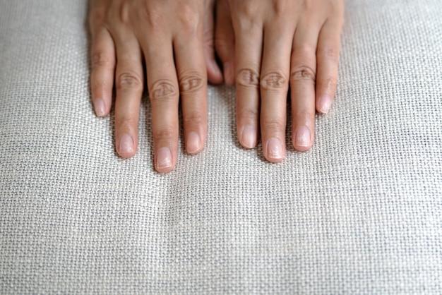 Fragilità delle unghie danneggiate dopo l'uso di gommalacca o lacca gel