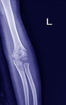 Frattura del gomito a raggi x.