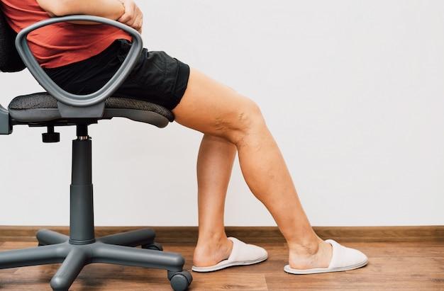 Gambe di concetto di dolore delle gambe legate con la corda isolata su bianco