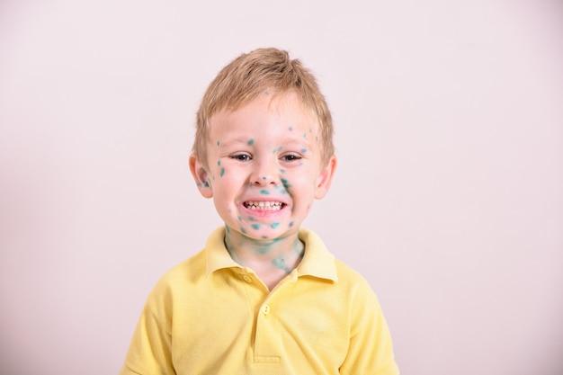 Giovane bambino con varicella. bambino malato con varicella. virus della varicella o eruzione cutanea con bolle di varicella sul corpo e sul viso del bambino. ritratto del ragazzino con varicella.