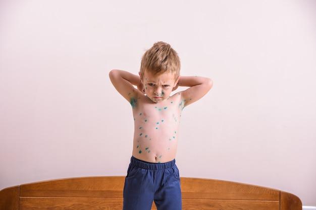Giovane bambino, ragazzo con varicella. bambino malato con varicella. virus della varicella o eruzione cutanea con bolle di varicella sul corpo e sul viso del bambino.