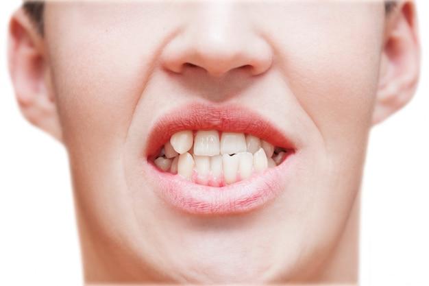 Giovane che mostra i denti crescenti curvati. l'uomo deve andare dal dentista per installare le parentesi graffe.