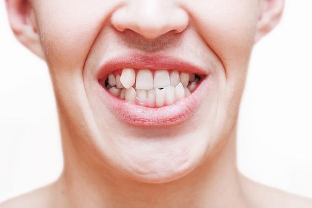 Giovane che mostra i denti crescenti storti. l'uomo deve andare dal dentista per installare le parentesi graffe.