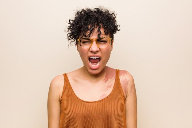 Giovane donna afroamericana con il segno di nascita della pelle che grida molto arrabbiato e aggressivo.