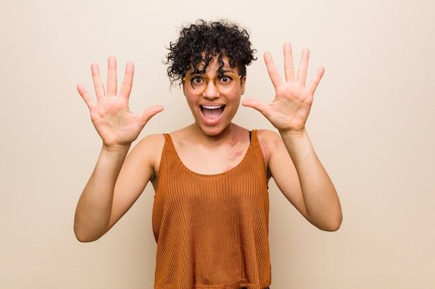 Giovane donna afroamericana con il segno di nascita della pelle che mostra numero dieci con le mani.