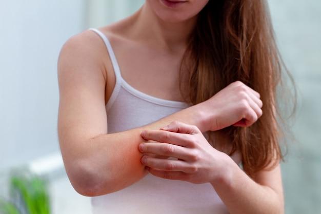 Giovane donna che soffre di prurito sulla sua pelle e graffiare un luogo pruriginoso.